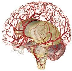 сосудистые заболевания мозга