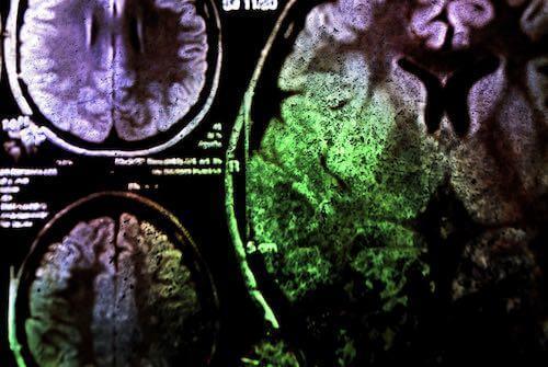 Рассеянный склероз мрт признаки