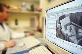 Видео электроэнцефалография (видео ЭЭГ мониторинг)