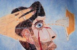 Nevralgija-trojnichnogo-nerva3