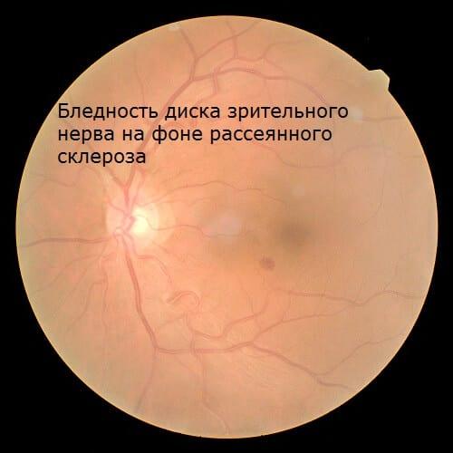 Бледный диск зрительного нерва при атрофии