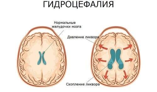 Гидроцефалия – скопление ликвора и атрофия вещества головного мозга
