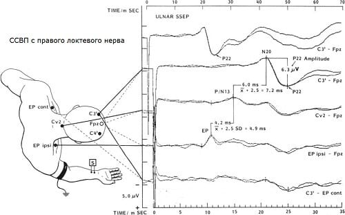 График соматосенсорных вызванных потенциалов с правого локтевого нерва