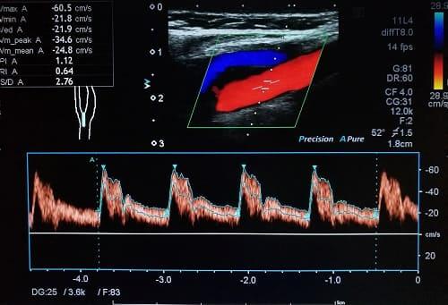 Картиная допплерографии внутренних сонных артерий