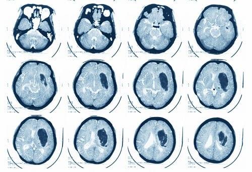 Кисты абсцессы мозга на МРТ