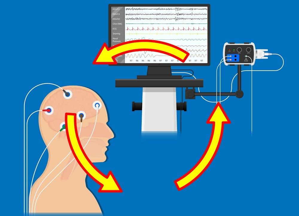 Контроль состояния мозга в реабилитации