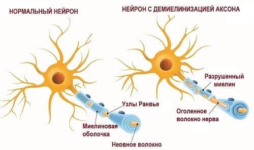 Нервное волокно в миелине и без него
