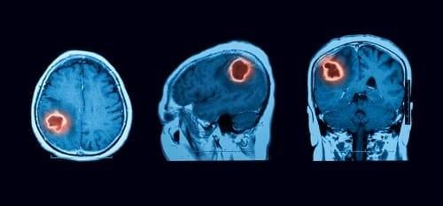 Очаг поражения мозга на МРТ