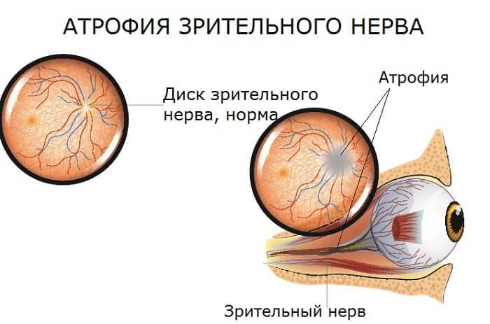 Отличие нормы и атрофии зрительного нерва