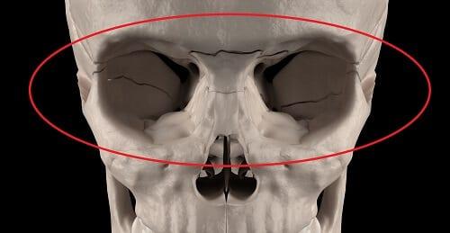 Переломы черепа опасные атрофией зрительного нерва