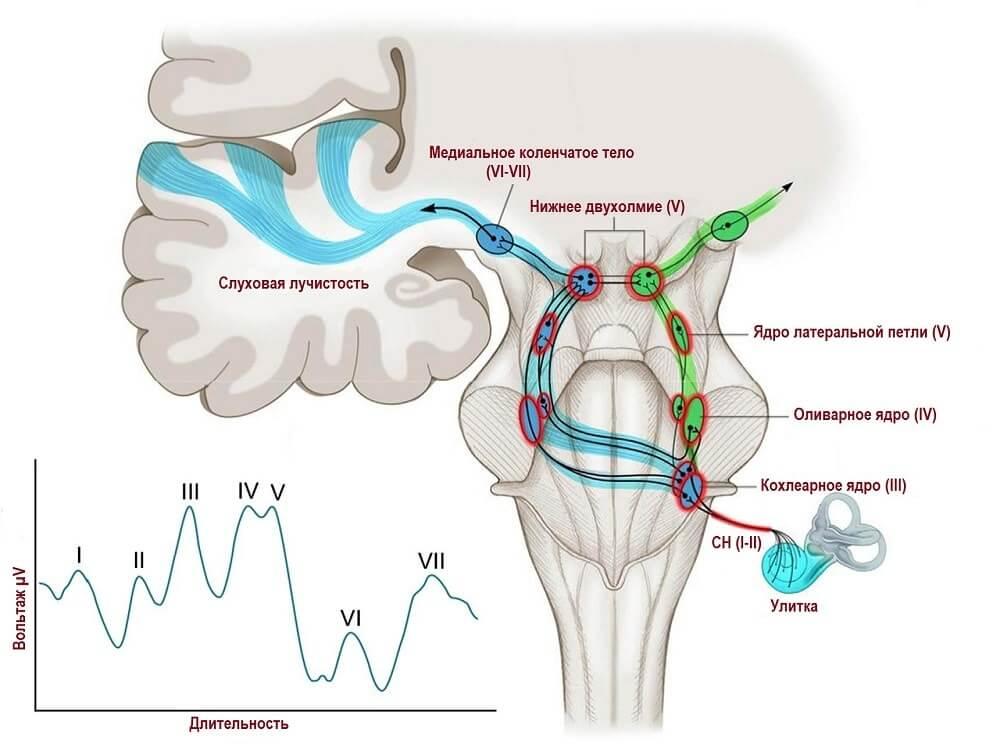 Пики потенциалов слухового анализатора в мозгу