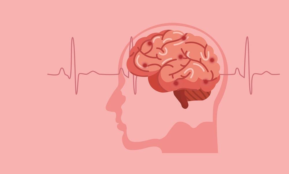 Работа мозга при условии сосудистой нормы