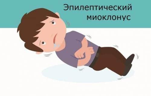 Ребенок в приступе миоклонических судорог
