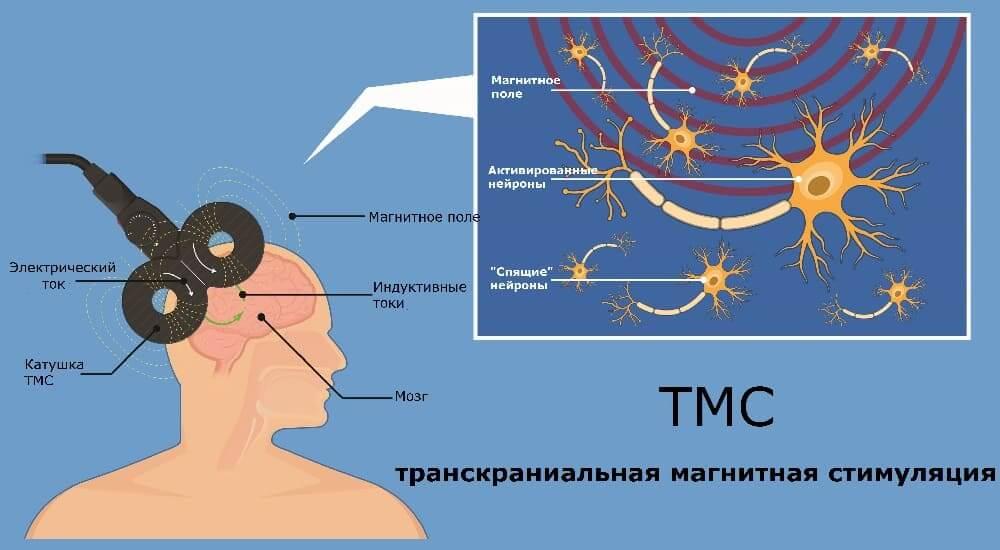 Схема и принцип работы ТМС
