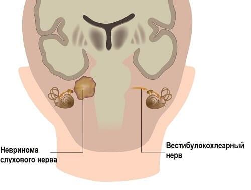 Схема невриномы слухового нерва
