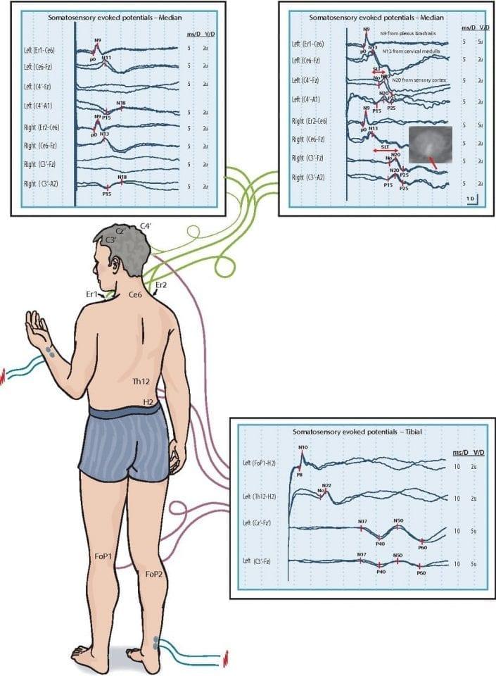 Схема снятия соматосенсоорных вызванных потенциалов