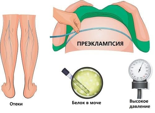 Симптомы токсикоза преэклампсии