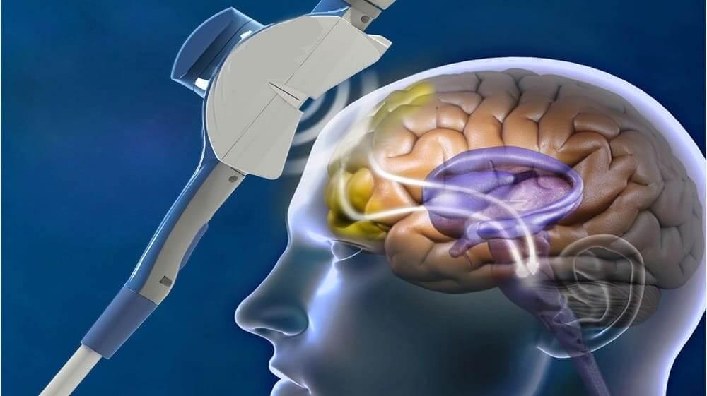 Магнитное поле действует на мозг через кости черепа