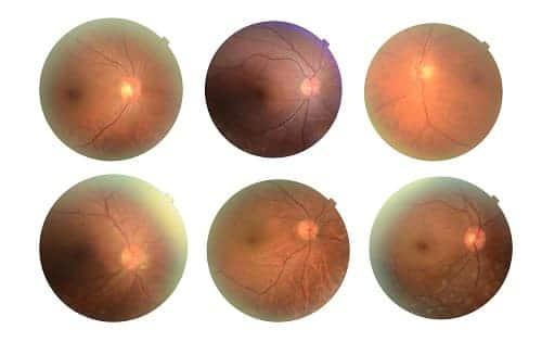 Варианты диабетической ретинопатии