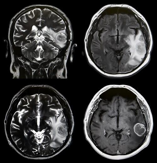 Варианты роста опухоли мозга на МРТ