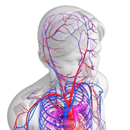 инсульт у молодых, ишемический инсульт, реабилитация после инсульта