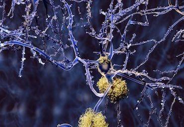 БП, деменция, болезнь паркинсона, паркинсонизм, когнитивные нарушения