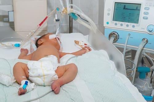 Болезни новорожденных риск алалии