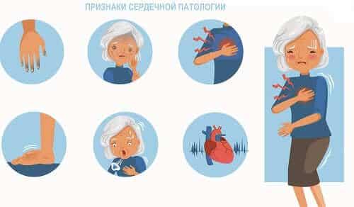 Симптомы сердечной патологии