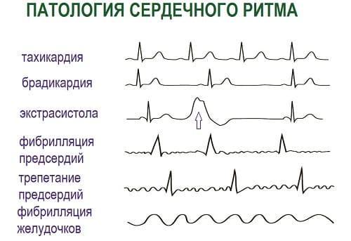 Варианты аритмии сердца на ЭКГ
