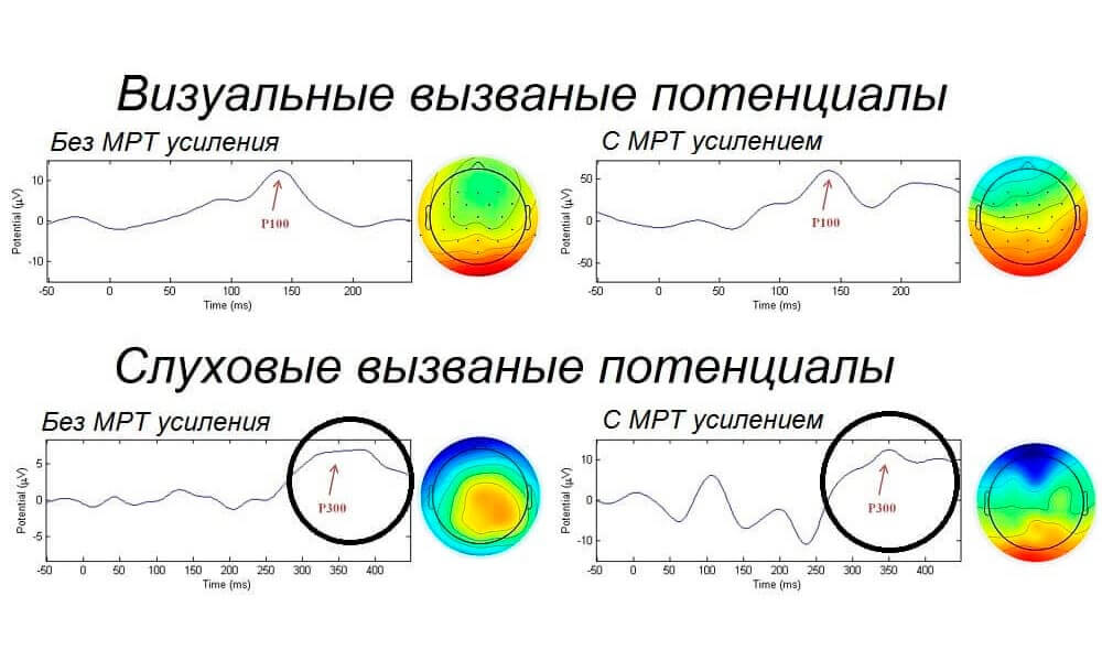 Вызванные потенциалы без и с МРТ усилением