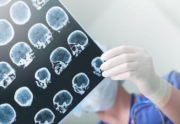 абсанс, абсансы, эпилептические абсансы, абсанс лечение, абсанс диагностика, абсанс профилактика