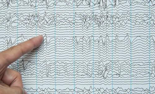 Аномалия на электроэнцефалограмме