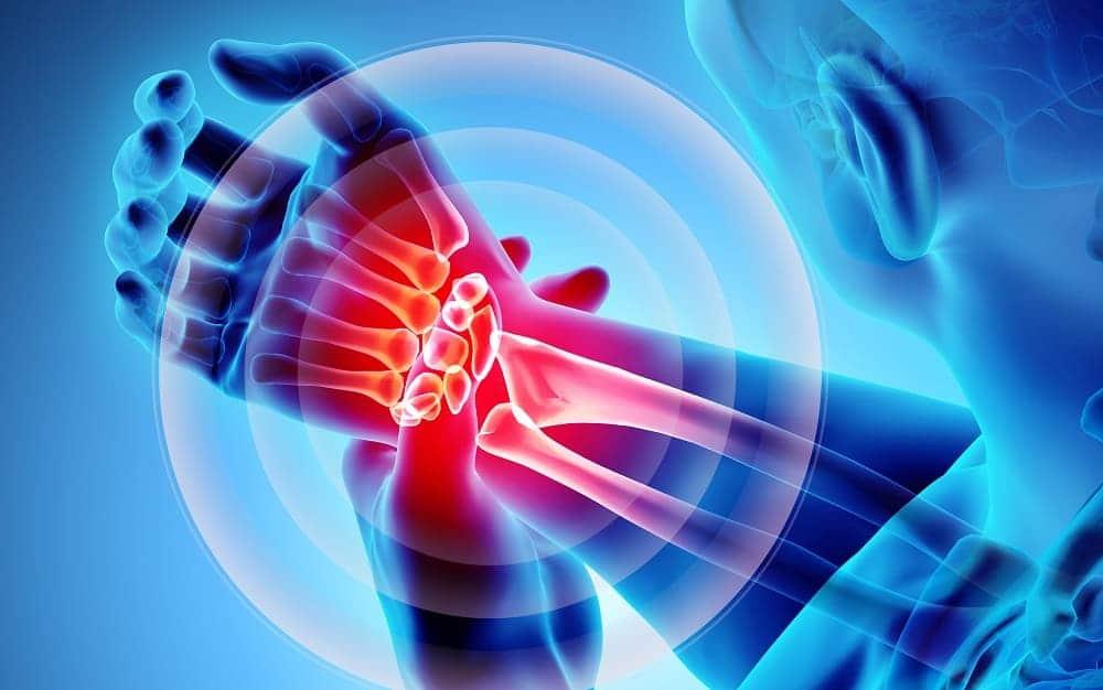 Синдром карпального канала – ущемление нерва в запястье