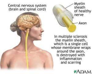 Rassejannyj-skleroz1
