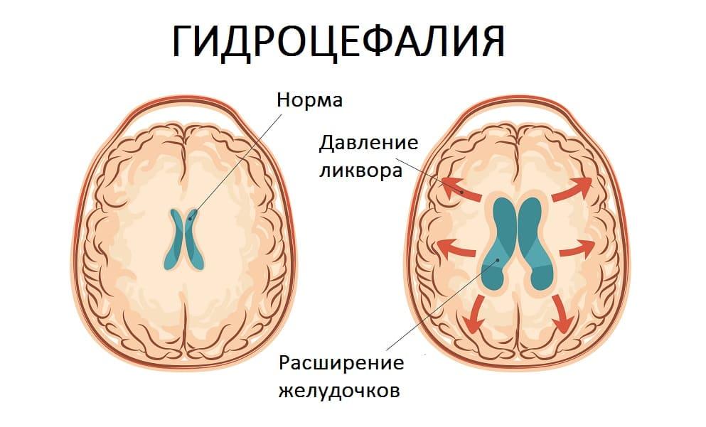 Принцип формирования гидроцефалии