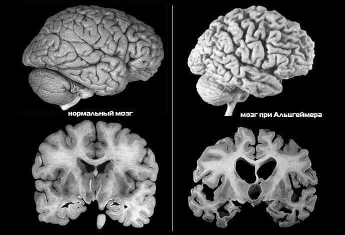 Мозг больного Альцгеймера меньше, чем у здорового человека