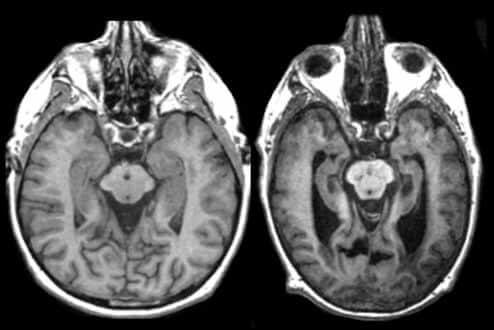 Мозг здорового и больного на МРТ