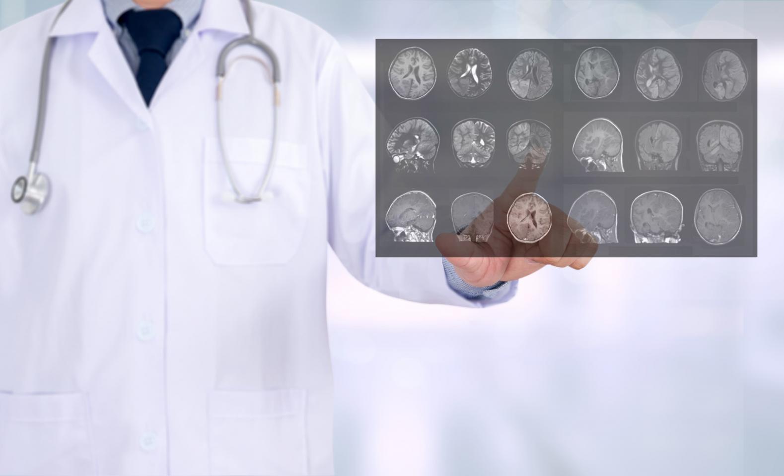врач держит снимок МРТ