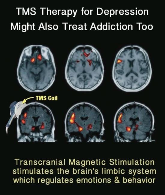 ТМС терапия при депрессии - изменения в областях мозга
