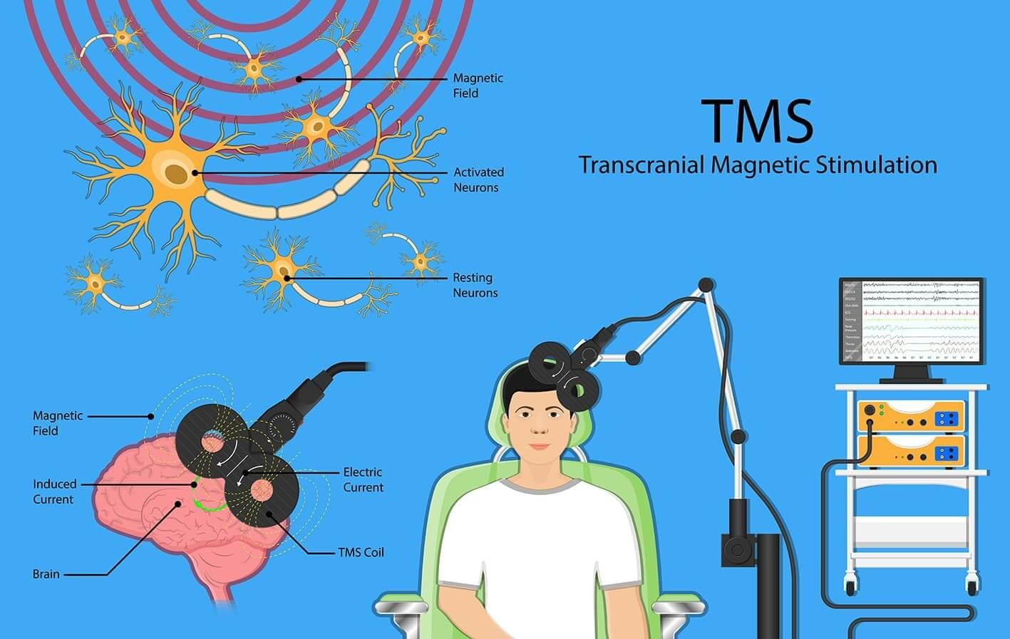 схематическое изображение ТМС