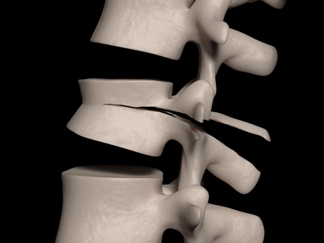 схематическое изображение стресс-перелома позвонка