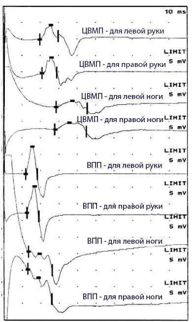 ЦВПМ и ВПП для рук и ног - схематические графики импульсов