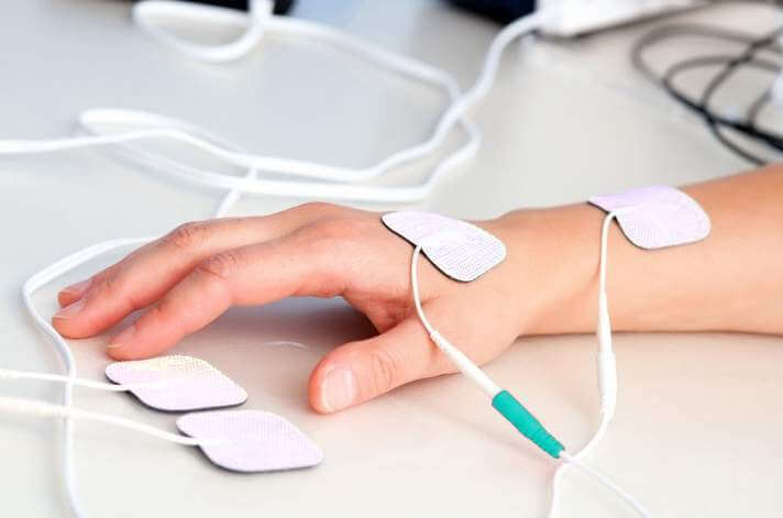 Электростимуляция мышц руки