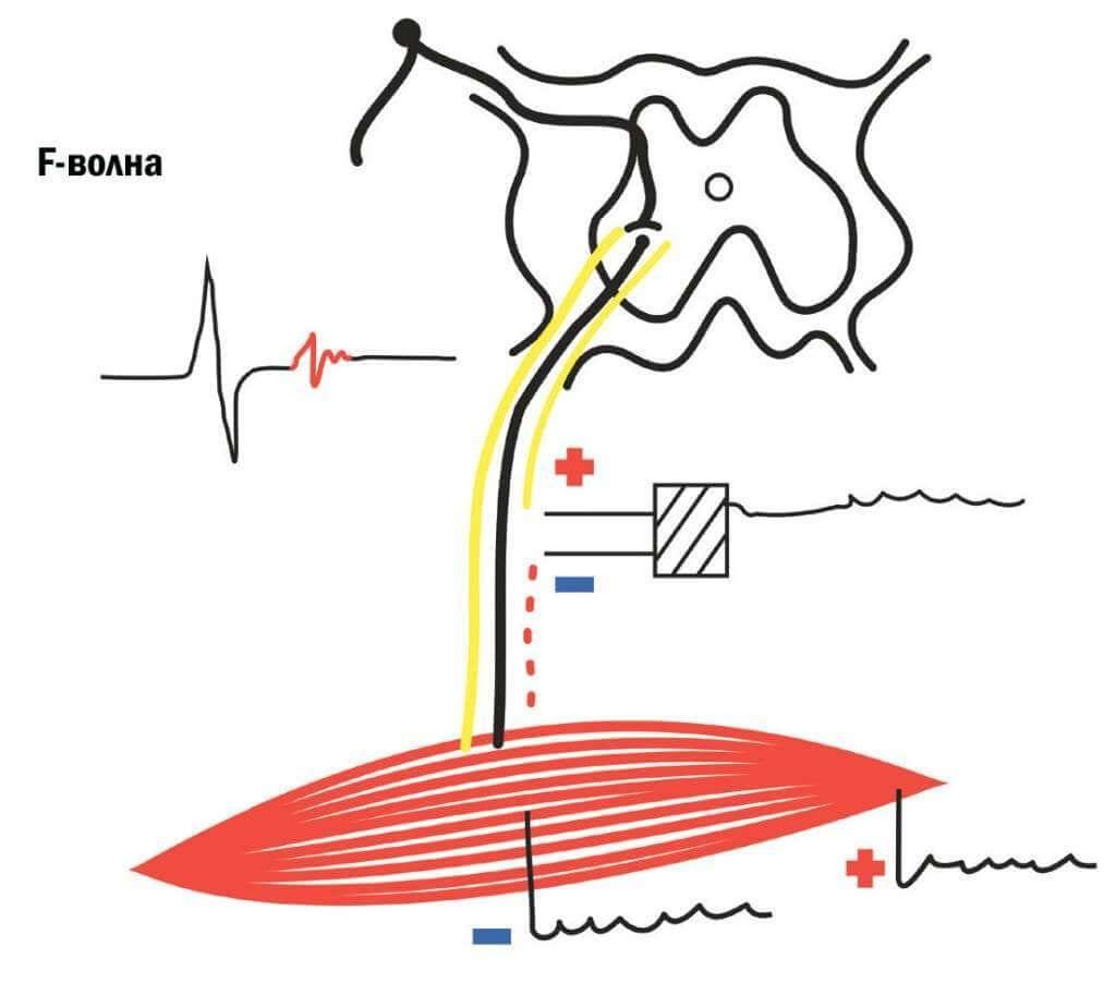 F-волна при стимуляции мышцы