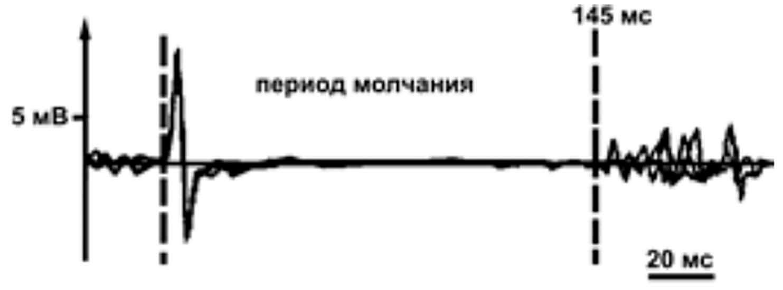 График возникновения периода молчания при ТМС