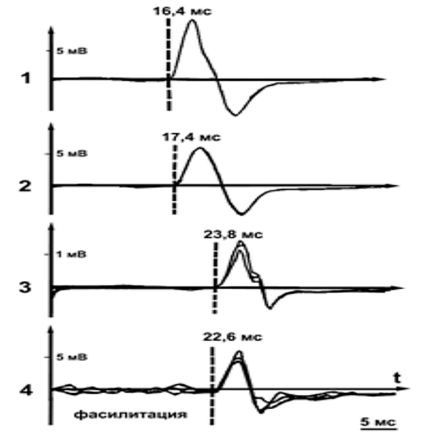 Графики моторных ответов при ТМС