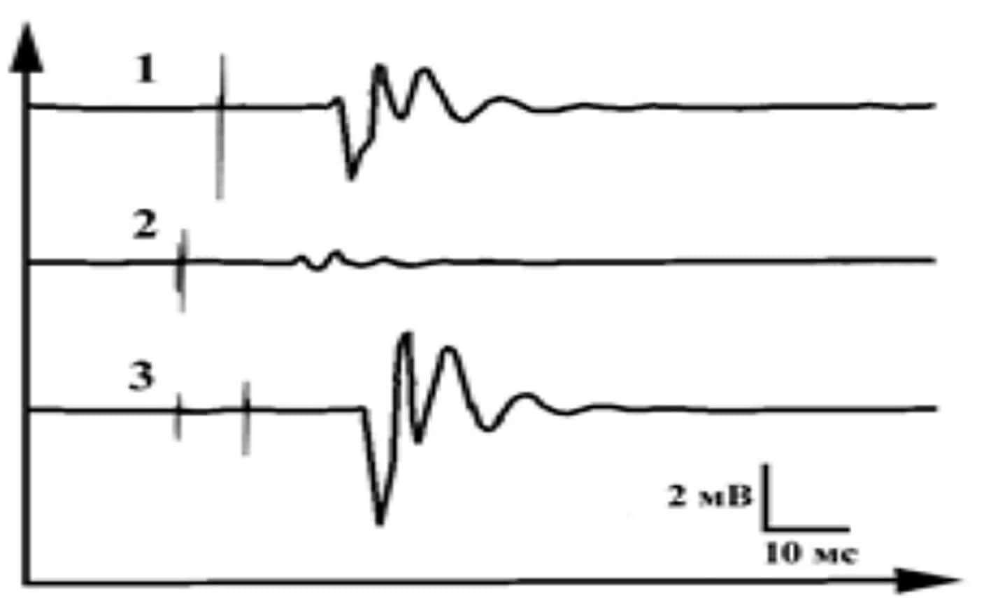 Парные и одиночные стимулы при ТМС - схематические графики