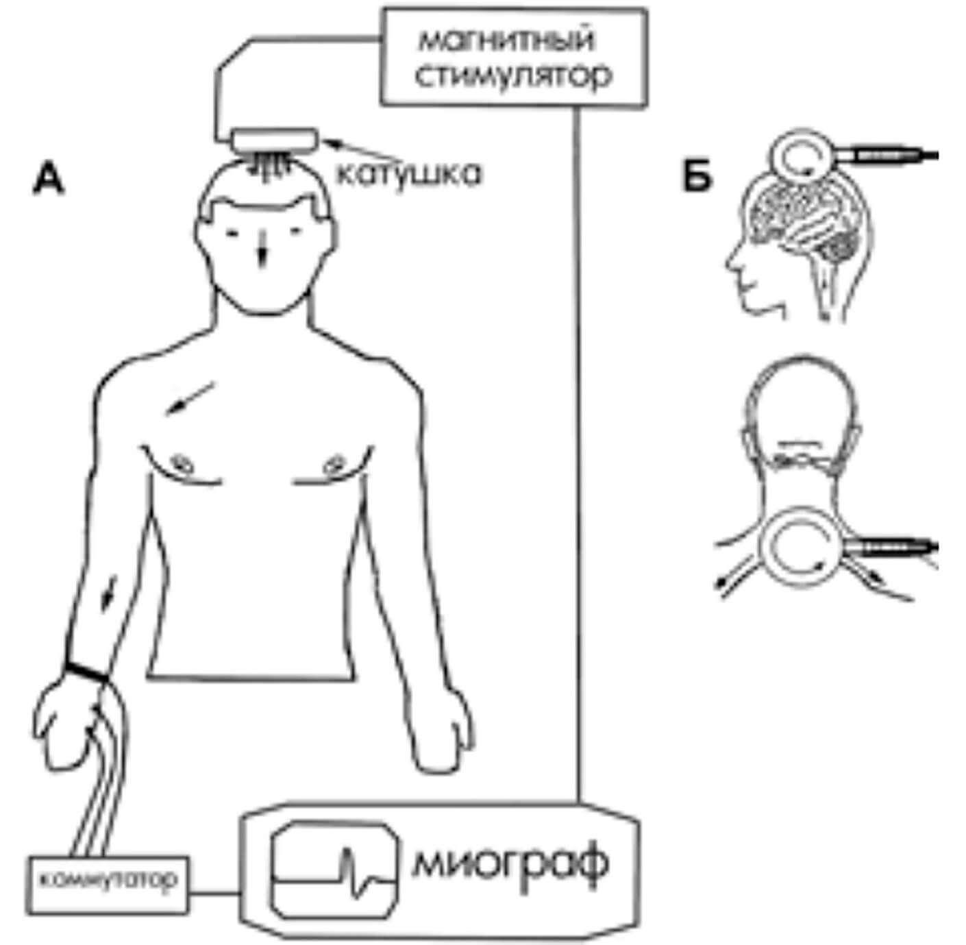 Схема процесса ТМС и расположения катушки