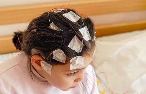 ЭЭГ диагностика эпилепсии у ребенка