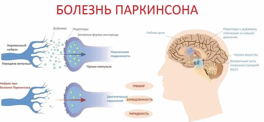 Дефицит дофамина в развитии болезни Паркинсона